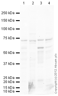 Western blot - Anti-68kDa Neurofilament antibody (ab113854)