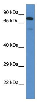 Western blot - GALNT3 antibody (ab113880)