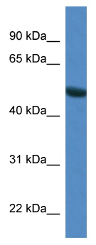 Western blot - SNTG1 antibody (ab113881)