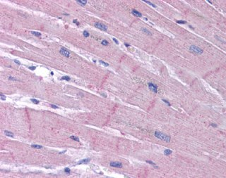 Immunohistochemistry (Formalin/PFA-fixed paraffin-embedded sections) - KCNK18/TRESK antibody (ab113883)