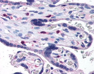 Immunohistochemistry (Formalin/PFA-fixed paraffin-embedded sections) - SNX16 antibody (ab113885)