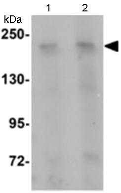 Western blot - Girdin antibody (ab113890)