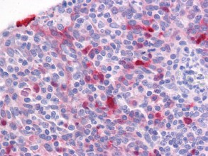 Immunohistochemistry (Formalin/PFA-fixed paraffin-embedded sections) - Girdin antibody (ab113890)