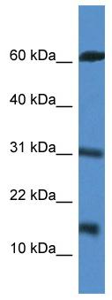 Western blot - INCA antibody (ab113892)