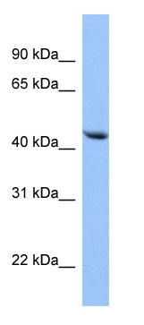 Western blot - EED antibody (ab113911)