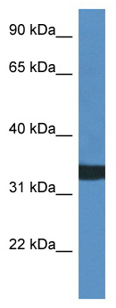 Western blot - Anti-ASAH3 antibody (ab113916)