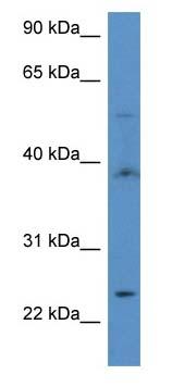 Western blot - Anti-Acyl-CoA Thioesterase 9 antibody (ab113919)