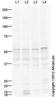Western blot - Anti-htrA1 antibody (ab113927)