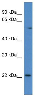 Western blot - RAB10 antibody (ab113947)
