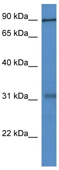 Western blot - MID2 antibody (ab113959)