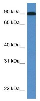 Western blot - Anti-LOXL2 antibody (ab113960)