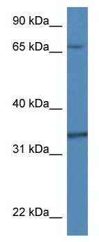 Western blot - Anti-CKAP1 antibody (ab113962)