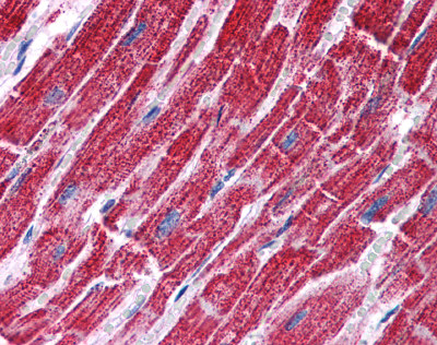 Immunohistochemistry (Formalin/PFA-fixed paraffin-embedded sections) - Anti-FH antibody (ab113963)