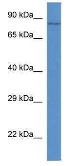 Western blot - Breast cancer suppressor candidate 1 antibody (ab113965)