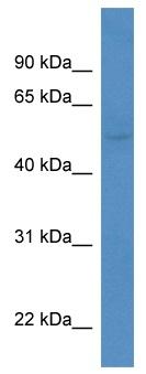 Western blot - Anti-KCNK5 antibody (ab113966)