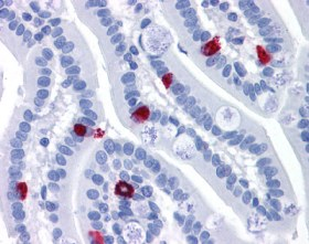 Immunohistochemistry (Formalin/PFA-fixed paraffin-embedded sections) - GCC2 antibody (ab113967)