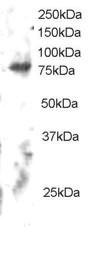Western blot - Anti-ELMO2 antibody (ab113976)