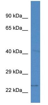 Western blot - SLC10A2 antibody (ab113977)