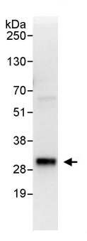 Immunoprecipitation - Anti-TIGAR antibody (ab113980)
