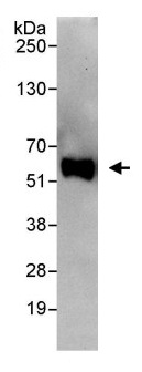 Immunoprecipitation - Anti-CCD86 antibody (ab113981)
