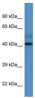 Western blot - WDR68 antibody (ab113982)