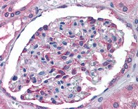Immunohistochemistry (Formalin/PFA-fixed paraffin-embedded sections) - Anti-HIP2 antibody (ab113990)