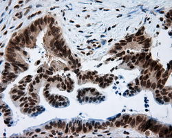 Immunohistochemistry (Formalin/PFA-fixed paraffin-embedded sections) - Anti-MCL1 antibody [2E11] (ab114026)