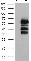 Western blot - Anti-VASP antibody [1H8] (ab114029)