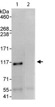 Immunoprecipitation - Ataxin 1 antibody (ab114045)