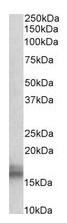 Western blot - Anti-Niemann Pick C2 antibody (ab114047)