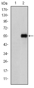 Western blot - CD105 antibody [3A9] (ab114052)
