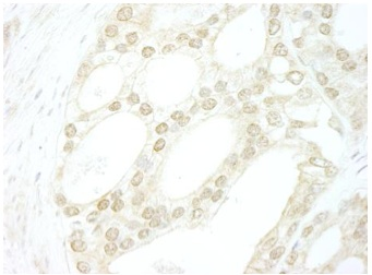 Immunohistochemistry (Formalin/PFA-fixed paraffin-embedded sections) - Anti-B MyB antibody (ab114055)