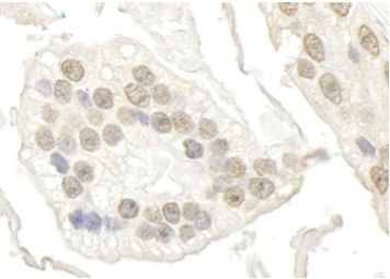 Immunohistochemistry (Formalin/PFA-fixed paraffin-embedded sections) - Anti-BRD7 antibody (ab114061)
