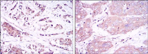 Immunohistochemistry (Formalin/PFA-fixed paraffin-embedded sections) - Anti-Beclin 1 antibody [2A4] (ab114071)