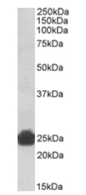 Western blot - Anti-GSTA5  antibody (ab114082)