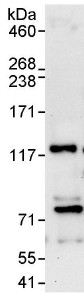 Immunoprecipitation - Anti-USP35 antibody (ab114123)