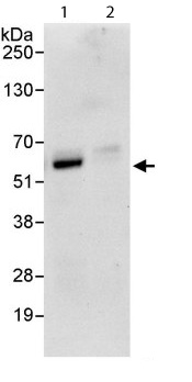 Immunoprecipitation - Anti-Cbx6 antibody (ab114124)