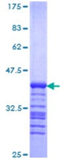 SDS-PAGE - Human NF-kB p65 protein fragment (ab114151)