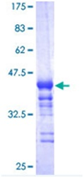 SDS-PAGE - Nrf2 protein (ab114160)