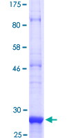 SDS-PAGE - Smoothened protein (ab114222)