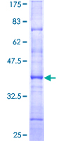 SDS-PAGE - Human HNF-4-alpha protein fragment (ab114232)