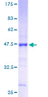 SDS-PAGE - Claudin 3 protein (ab114332)