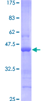 SDS-PAGE - BST2 protein (ab114390)