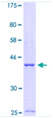 SDS-PAGE - Calsequestrin protein (ab114404)