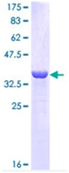 SDS-PAGE - Cytokeratin 16 protein (ab114405)