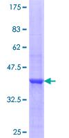 SDS-PAGE - Kallikrein 7 protein (ab114437)