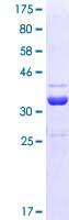 SDS-PAGE - hHR23b protein (ab114493)