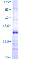 SDS-PAGE - Alas1 protein (ab114537)