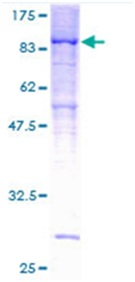SDS-PAGE - PPP2R5D protein (ab114547)