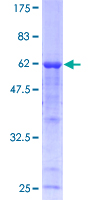 SDS-PAGE - Calpain 3 protein (ab114576)